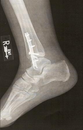 foot-xray.jpg